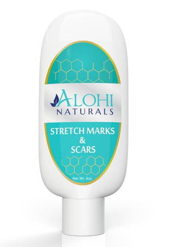 7. Alohi Stretch Mark Cream