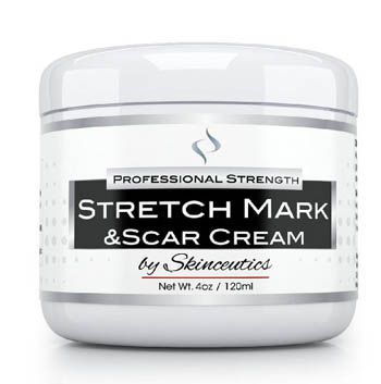 1. Best Stretch Mark Cream